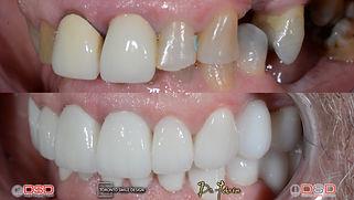 Toronto Cosmetic Dentistry Case 9 - Porc