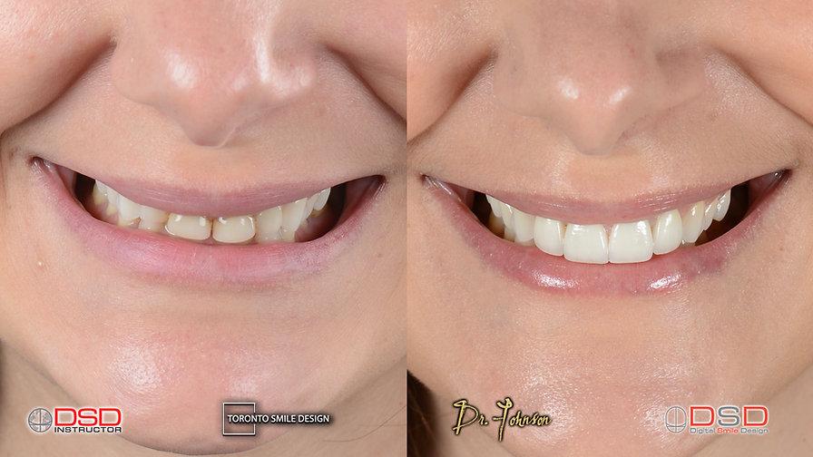 Cosmetic Dentist Toronto - Smile Transformation - Smile Makeover Yorkville.jpeg