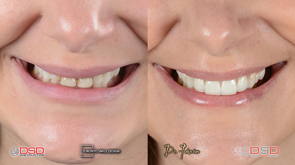 Cosmetic Dentist Toronto - Smile Transfo