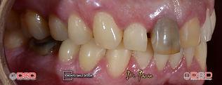 teeth midlines don t line up - diastema