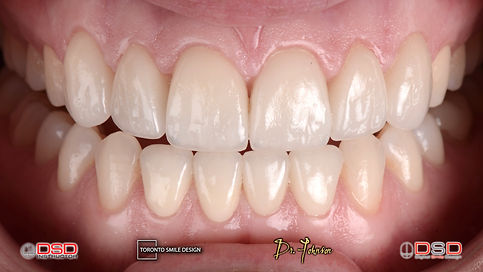 Toronto Cosmetic Dentist Dr. Johnson provides best cosmetic dental treatments in Yorkville Toronto