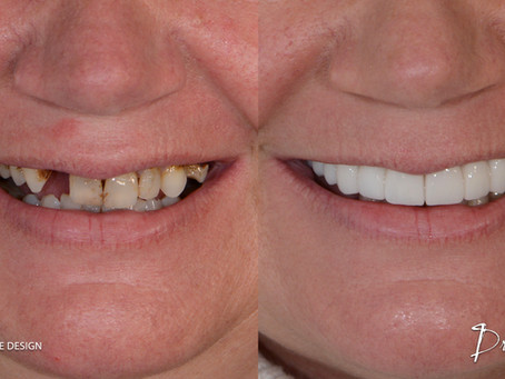 Dental Bridge: Types, Benefits, alternatives, Use and Costs