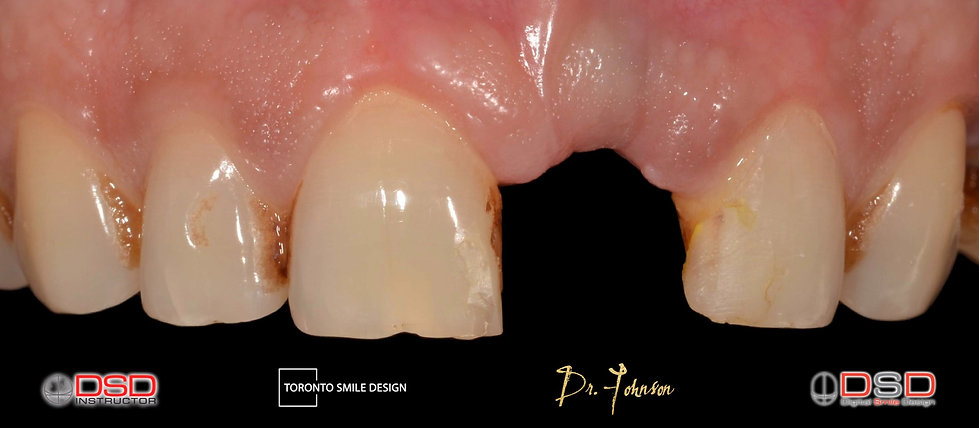 dental implant cost for one tooth - toronto dental implants - dental implants before and a