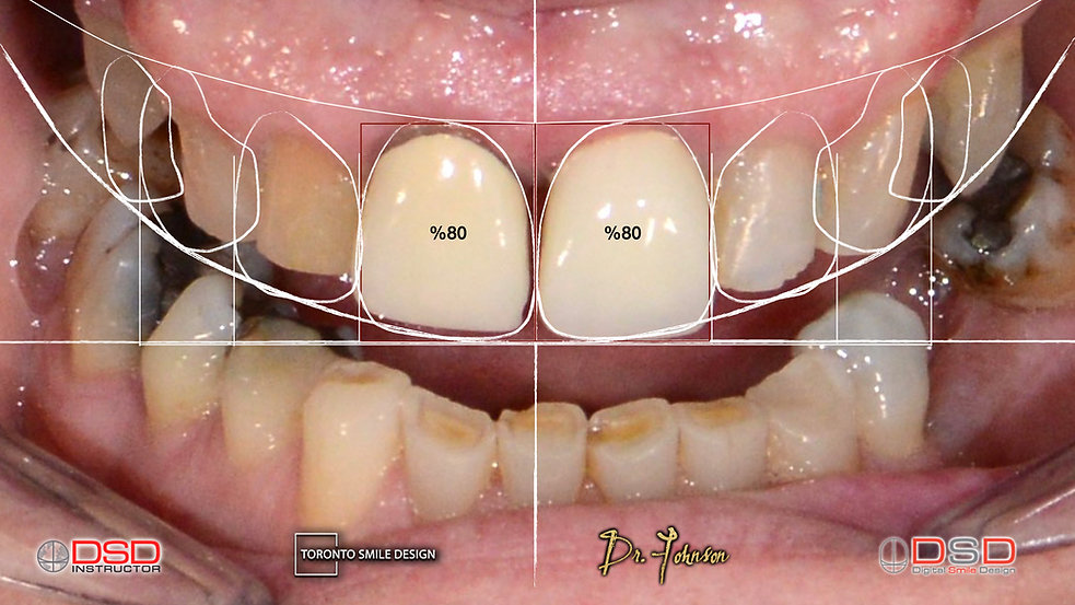 Toronto Smile Design Cosmetic Dentist Ca
