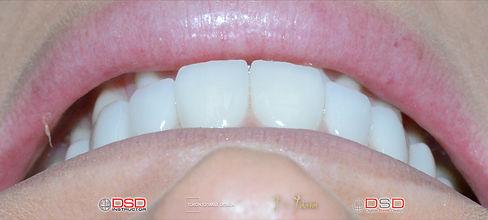 Toronto Dentist Case -  Veneers Toronto