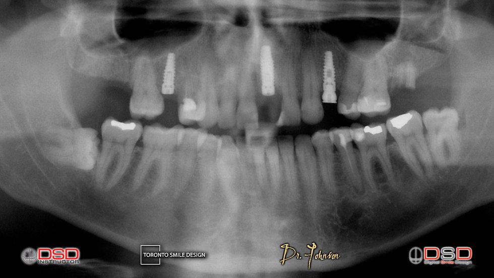 toronto dental implants - dental implants near me - dental implants.jpeg