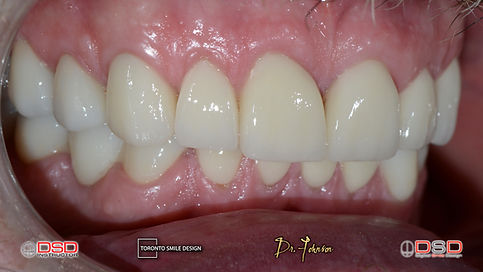 Best cosmetic dentist Toronto - Dental Bridges and Dental Crowns