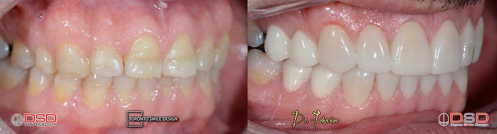 Toronto Porcelain Veneers - Best Cosmetic Dentist Toronto.jpeg