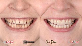 Best Cosmetic Dentist - Porcelain Veneers Toronto