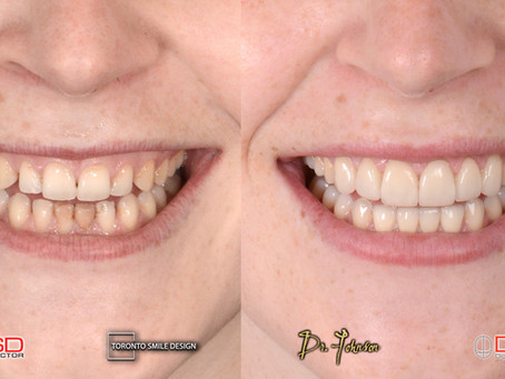 Laser Gum Treatments – New generation of Periodontal Treatments