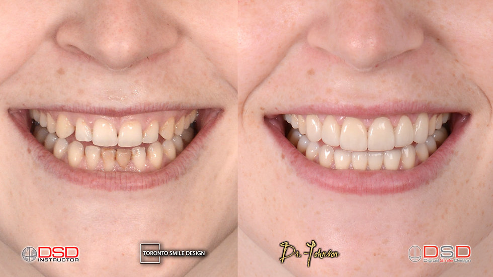 Best cosmetic dentist toronto - Gum contouring patient before and after pictures of laser crown lengthening
