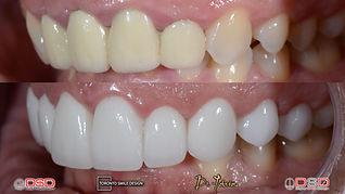 Toronto Cosmetic Dentistry - Toronto Por