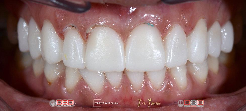 Toronto Dentist Case -  Porcelain Veneer