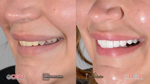 Toronto Cosmetic Dentist - Smile Makeove