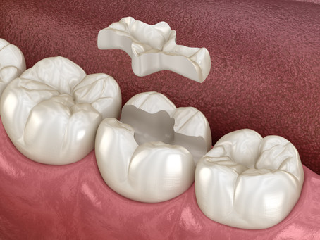 Inlays and Onlays: Minimally Invasive Solution for Heavily Restored Teeth