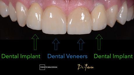Toronto Dental Implants - dental implant