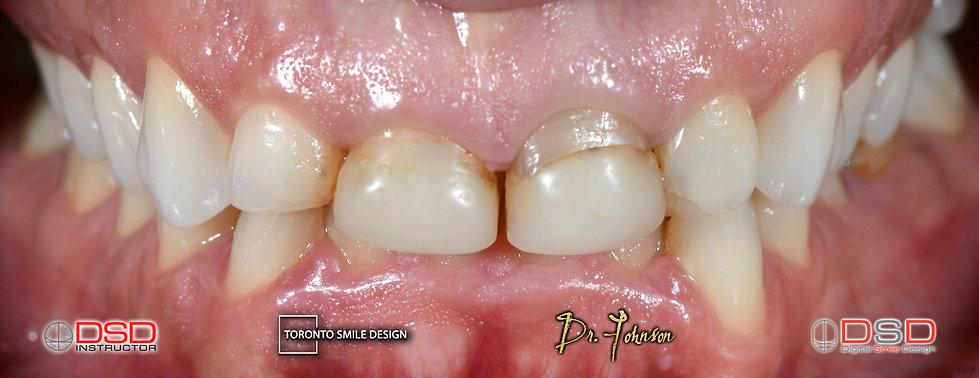 Cosmetic Dentist Toronto Smile Transform