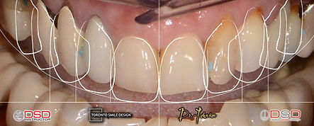 Cosmetic Dentist Toronto - Smile Transformation_edited.jpg