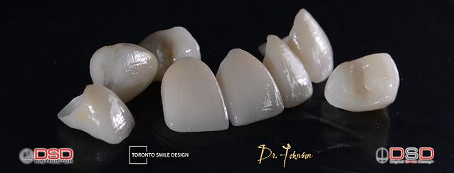 yellow teeth - diastema - gap in teeth g