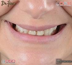Toronto Cosmetic Dentist - Smile Transfo