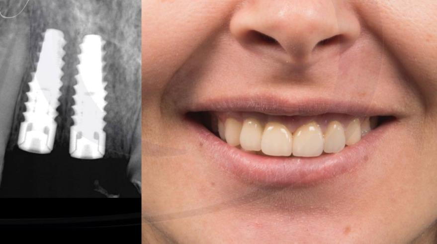 önbölge implant