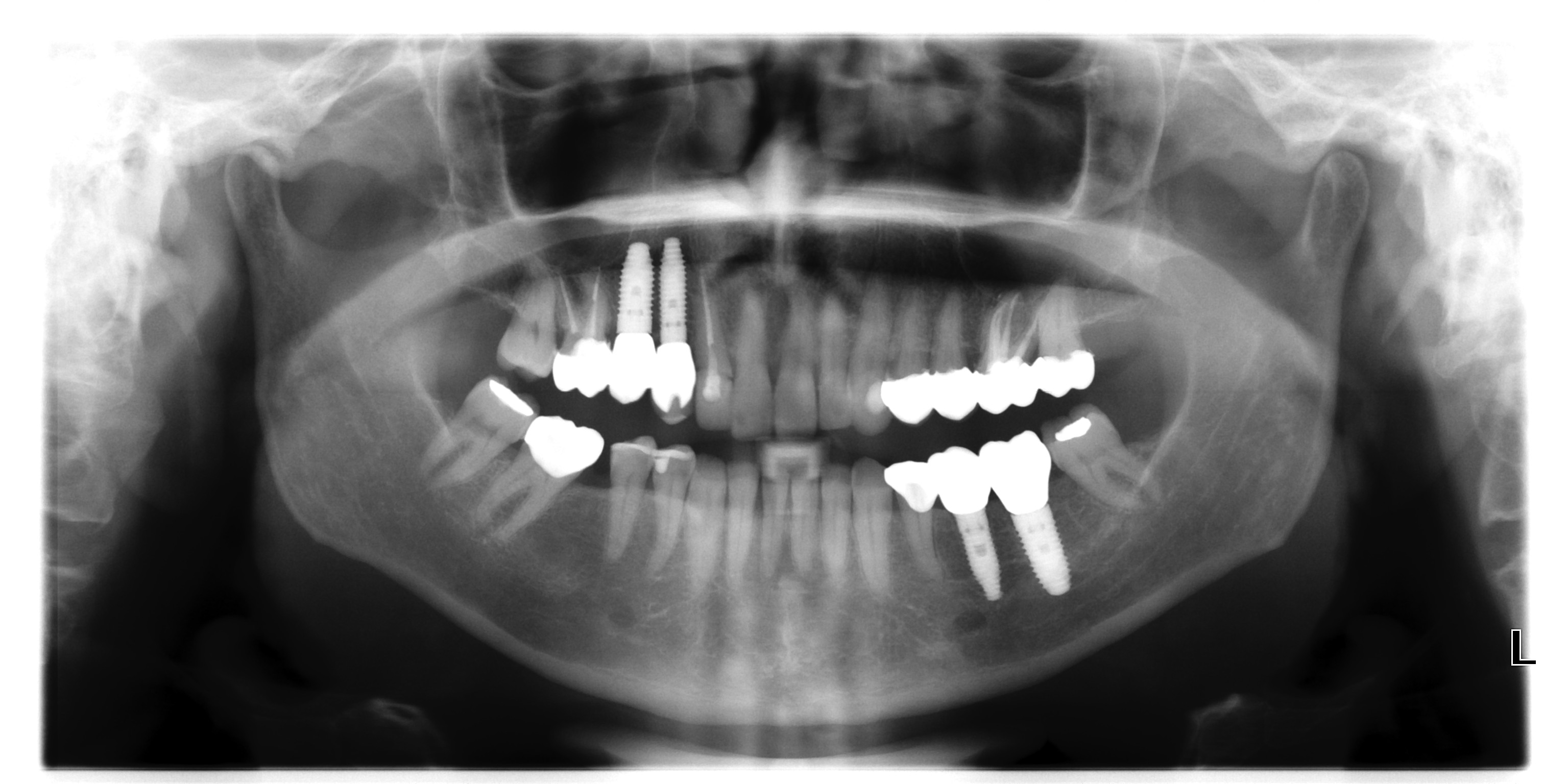 Panaromik Röntgen İmplant