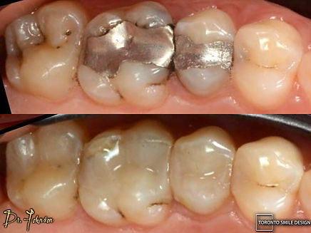 Tooth Filling - tooth sensivity after filling.jpeg