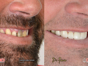 Yellow Teeth Causes of Yellowing and How to Whiten