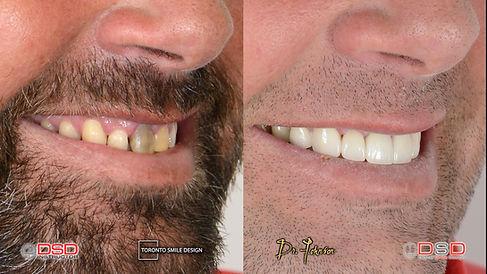 midline shift teeth - gap teeth - do por