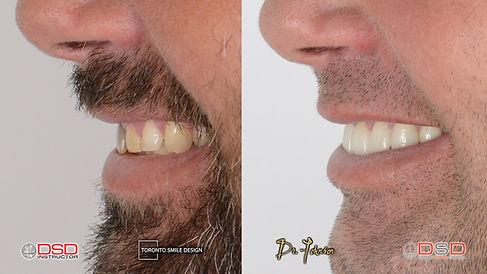teeth midline discrepancy - gap between