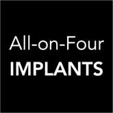 All-on-4 Dental Implants - Toronto Dental Implants