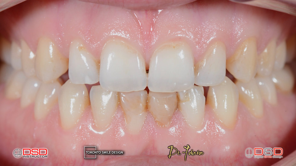 Best cosmetic dentist Toronto - Before treatment intraoral pictures
