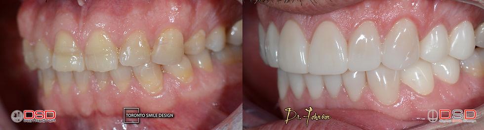 Porcelain Veneers Toronto - Cosmetic Dentist Near Me.jpeg