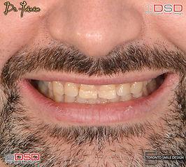 Best Cosmetic Dentist in Toronto - Veneer Toronto.jpeg
