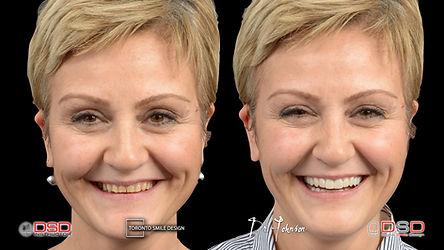 Cosmetic Dentist Toronto - Smile Makeover - Smile Rehabilitation.jpeg