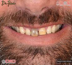 how to fix gap teeth - Porcelain Crowns Toronto - Discoloured Teeth .jpeg