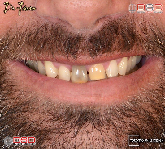 how to fix gap teeth - Porcelain Crowns