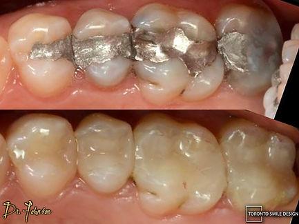 Tooth Filling - Toronto Dentist.jpeg