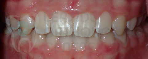 Orthodontic Case No 7 - 14th of October 2019 - Polydiastema case resolved by Toronto Orthodontist Dr. Emel Arat After The treatment Intraoral Picture of the patients smile