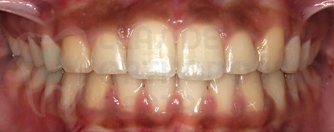orthodontic case 4 after treatment intraoral dental picture toronto orthodontist Emel Arat's Case