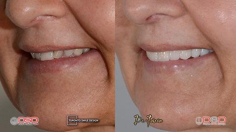 Toronto Cosmetic Dentist- Toronto Porcelain Crowns.jpeg