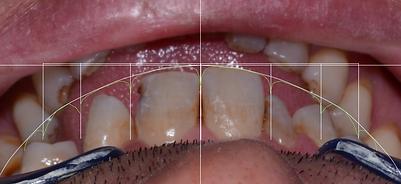 digital smile design ile 12 açısından, kırık dişler diş estetiği