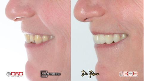 Cosmetic Dental Treatment Toronto - Cosm