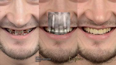 Dental Implants before and after - denta