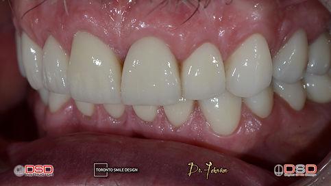 Smile Makeover with Dental Bridges and Dental Crowns after Smile Design Procedure