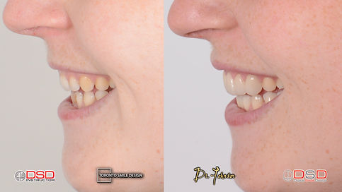 Toronto Veneers provided by the top cosmetic dentist Dr Johnson