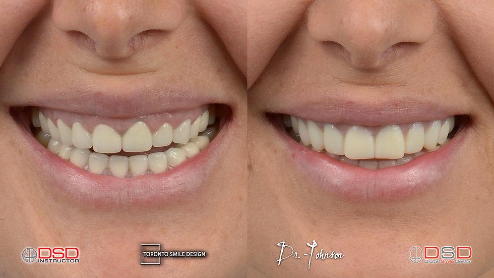 Smile Makeover Mock up - Smile Transformation Mock Up.jpeg