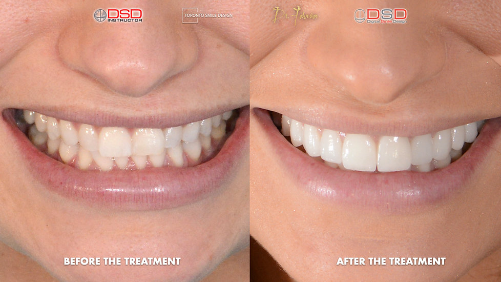 Cosmetic Dentist Toronto Case -  Porcela