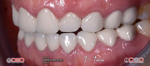 Toronto Smile Design - Smile Transformation.jpeg