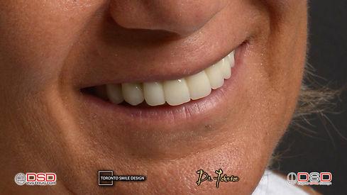 full dental implants cost near me - oral surgeon yorkville toronto.jpeg